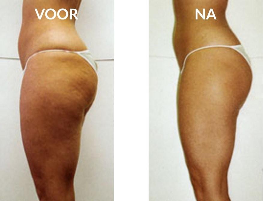 Cellulitis behandeling voor en na
